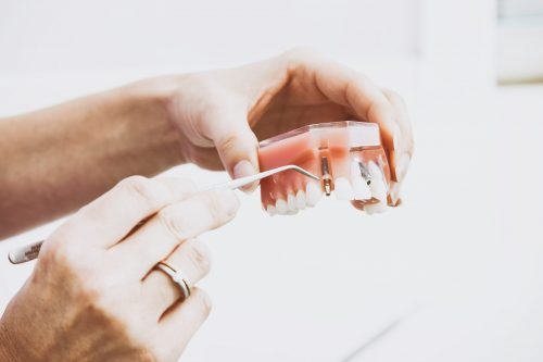 replace missing teeth in scottsdale with dental implants
